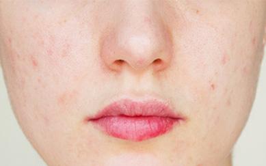 acne-altea